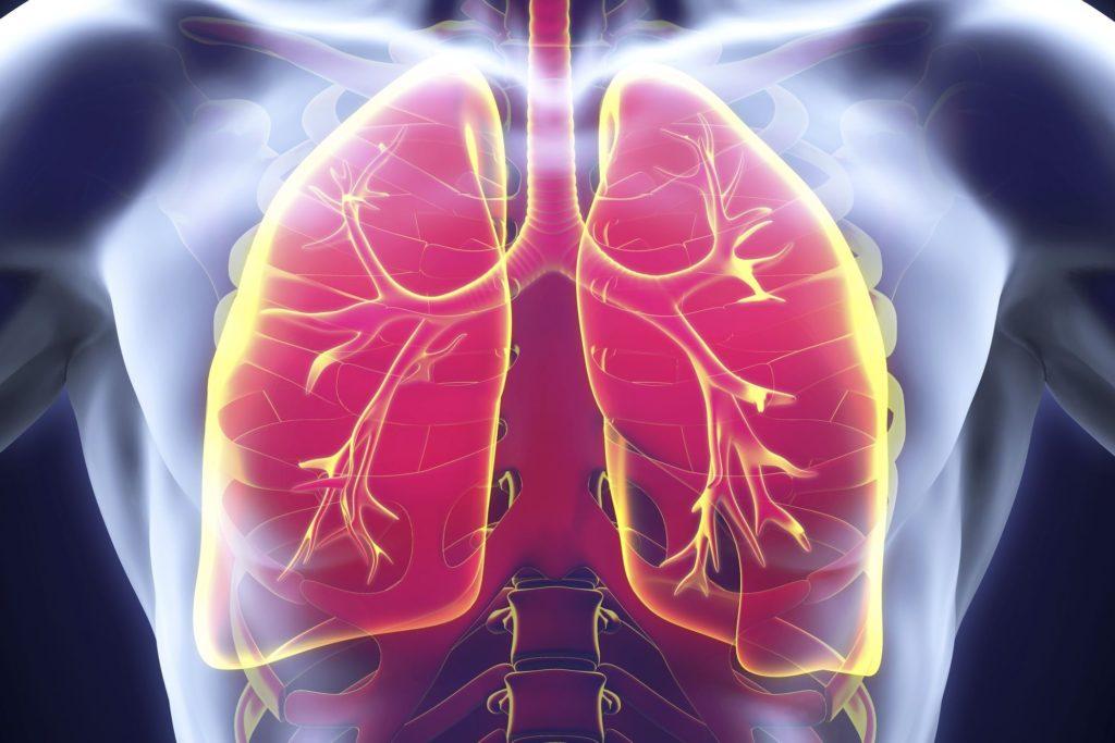 infection-pulmonaire-description